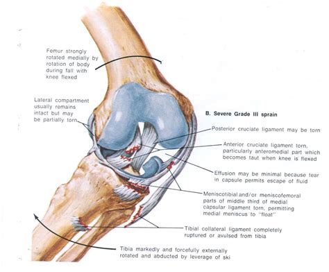 cruciate ligament tear knee injuries active plus milford physiotherapy 0800 749946