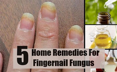 5 home remedies for fingernail fungus treatments