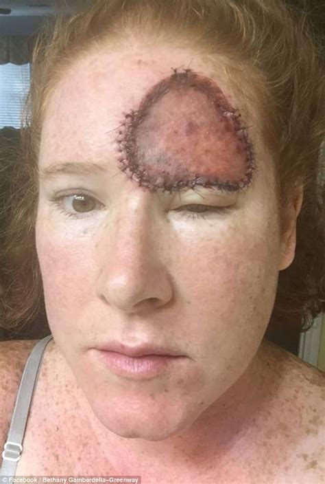 vig for head melanoma leaves women with huge open wound on her forehead