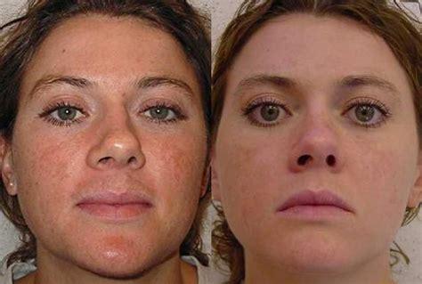 пилинг аспирином фото до и после