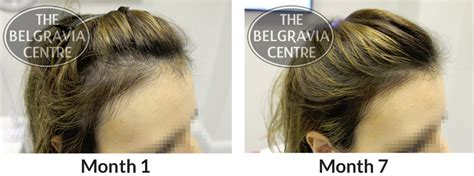 can female pattern hair loss be reversed research finds thinning hair can make women look 10 years