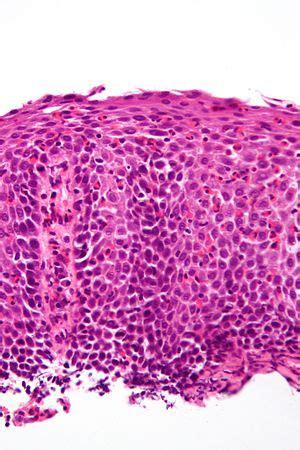 Eosinophilic esophagitis - Libre Pathology Eosinophils Symptoms