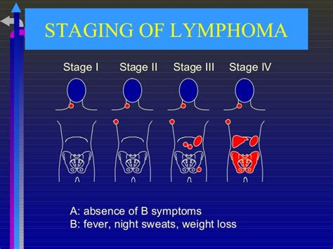 lymphoma stages 10 lymphoma year