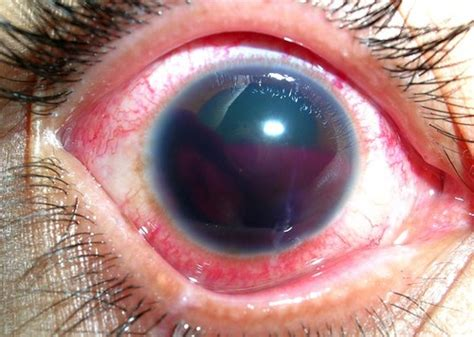 eye bleeding recognizing and managing hyphema aid trainers