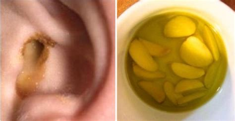 how to treat a s ear infection at home here s how to cure an ear infection naturally in just 1 day