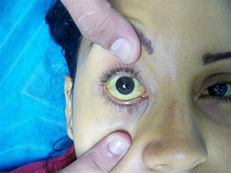 yellow coloration of the skin causes of jaundice and a high bilirubin level healdove