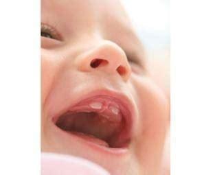salida de dientes y diarrea 191 fiebre en beb 233 s a causa de los dientes todopap 225 s