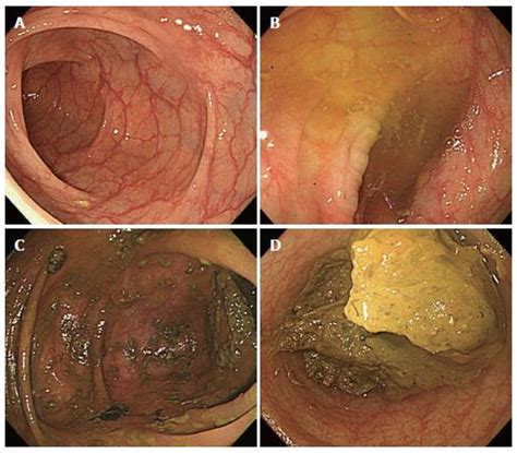 Stool In Cecum by Bowel Preparations As Quality Indicators For Colonoscopy