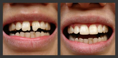 composite tooth bonding just ask
