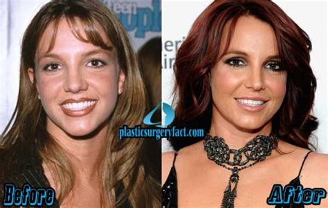 Britneys To Toe Plastic Surgery by Rhinoplasty Surgery Before And After Http