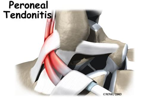 Peroneal Tendon Problems Orthopedic Surgery Algonquin