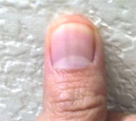 dark line on fingernail black line on nail melanoma quotes