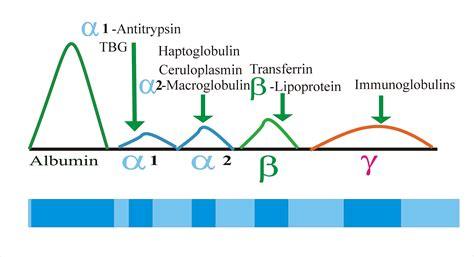 protein electrophoresis urine protein serum electrophoresis total protein albumin and