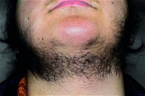 stop womens chin hair growth red flag symptoms and clinical signs gponline