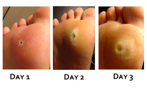 How To Remove A Planters Wart by 1 Best Plantar Wart Removal Guide Verruca S Kryptonite