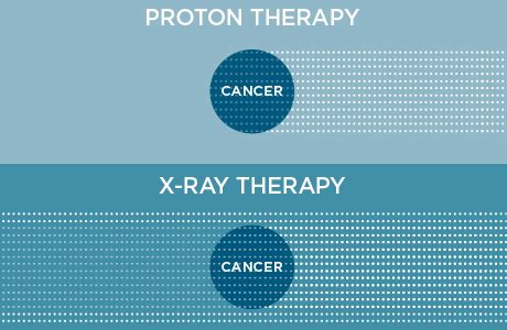 Proton Therapy Chicago by How Does Proton Therapy Work Northwestern Medicine