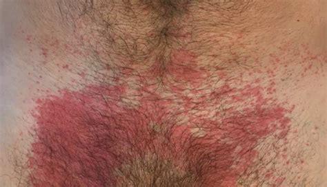 picor entrada vagina dermatite de contato causas sintomas e tratamento 187 md
