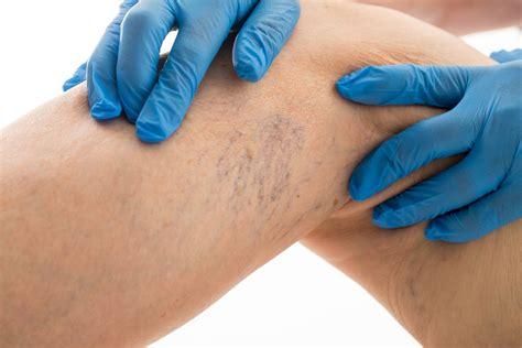 vasi capillari rotti un trattamento mirato per eliminare i capillari