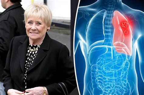 corrie actress dead what is emphysema the lung condition coronation street