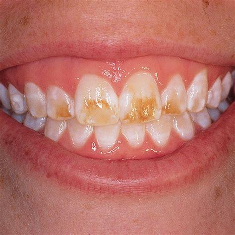 opalustre kit optident specialist dental supplies