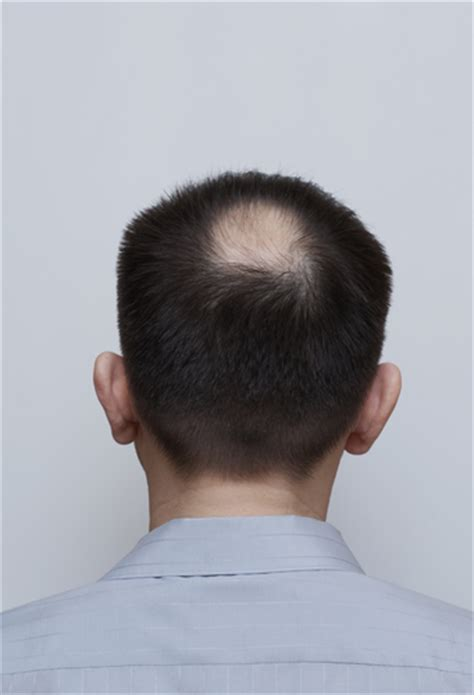 bald patch in the middle of my head hairstyles for bald spots on head pictures to pin on pinterest pinsdaddy