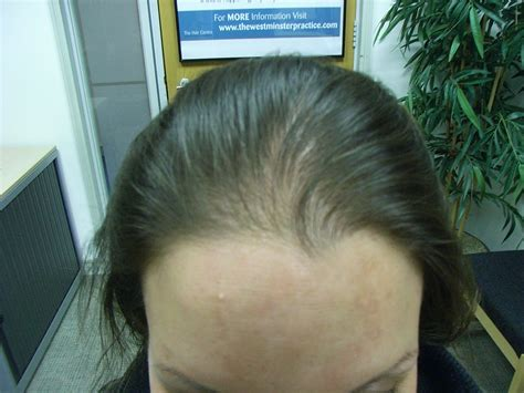 female mid frontal balding thyroid hair loss pattern www pixshark com images