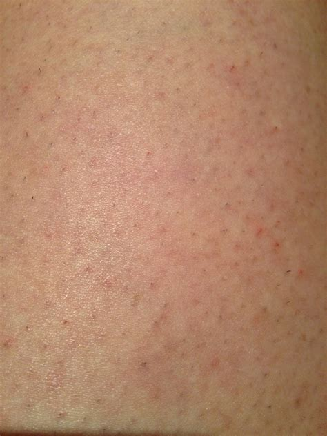 can hair bumps hurt hair follicles hurt myideasbedroom com