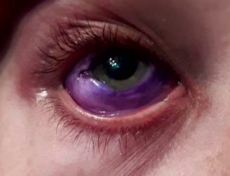 eye tattoo cause blindness model s eye may be permanently damaged after getting a