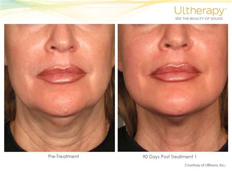 ultherapy before and after dr laser