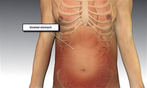 distended stomach 7 remedies for relieving bloating easing crs and improving digestion the