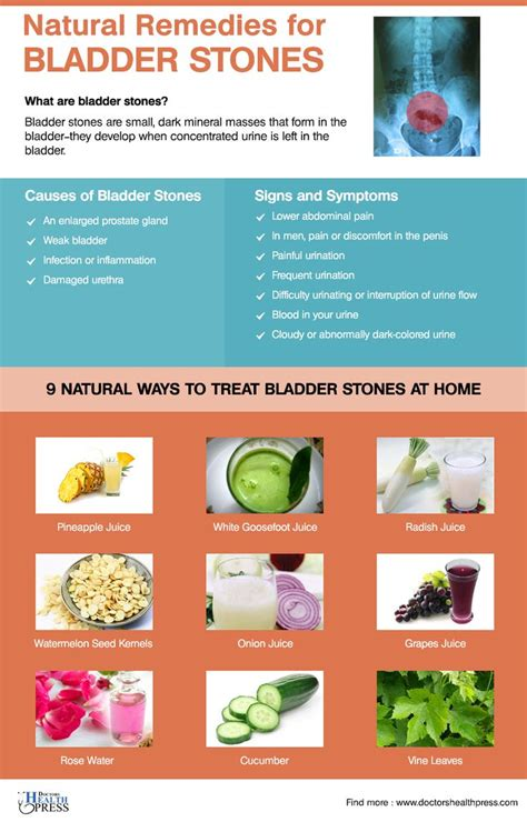 9 remedies for bladder stones health stones and