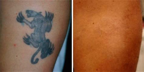 eczema tattoo 100 eczema and tattoos laser removal new