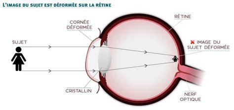 correction myopie lentille qu est ce que l astigmatisme happymag 188   astigmatie