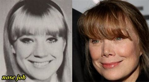 sissy before and after sissy spacek nose job before and after plastic surgery hits