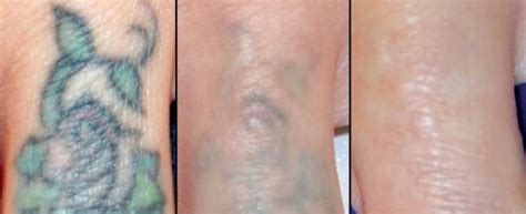 tattoo removal maine current specials piedmont plastic surgery dermatology
