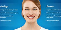 Image result for Opalescence Teeth Whitening