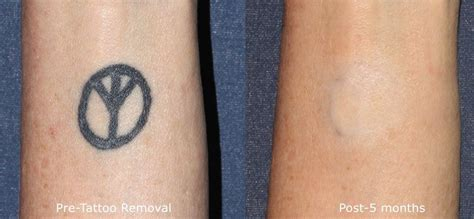 tattoo removal in louisiana laser skin treatments by cosmetic dermatologists in san diego