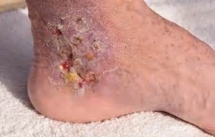 bed sores pics pressure sores causes treatment and prevention