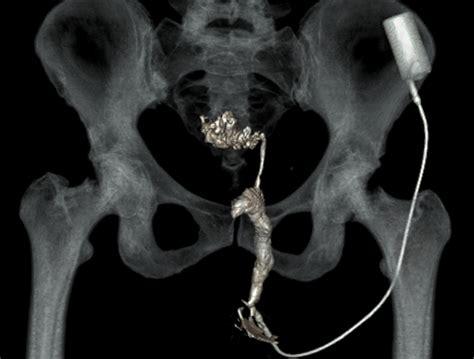 of sigmoid perianal fistula due to sigmoid
