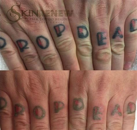 hand tattoo laser removal before and after laser tattoo removal photos