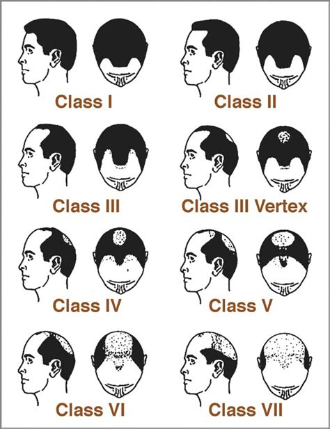 Types Of Hair Loss by Classification Of Hair Loss In