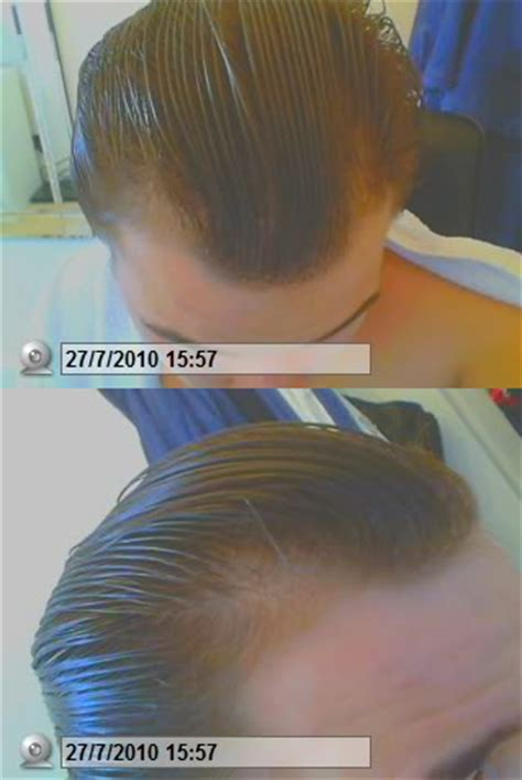 how to regrow african american temple hair dta1wcx png