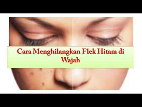 cara mudah menghilangkan bintik flek hitam di wajah secara cara menghilangkan flek hitam di wajah secara alami dan