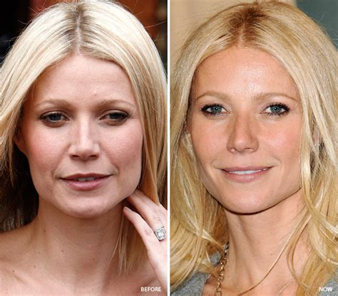 celebrity pr definition tacoma laser clinic 8 celebrities who fixed their skin