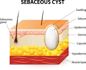 layer of fat on back of head sebaceous cyst treatment causes and prevention tips