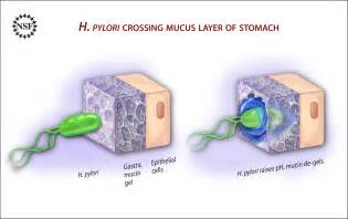 gastritis stuhl helicobacter pylori facharztwissen