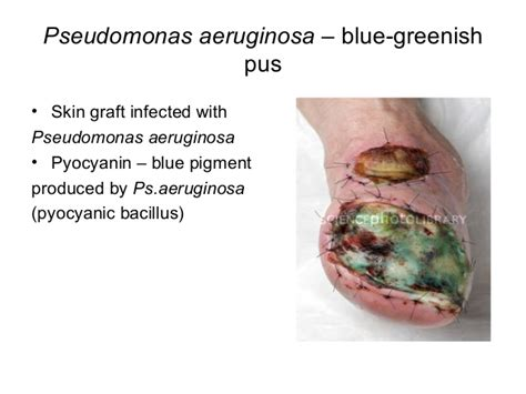 what color is pus macroscopic and microscopic examination in bacteriology
