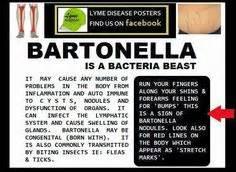Lyme Bartonella Detox by Foods For Lyme Disease Lyme Disease Research