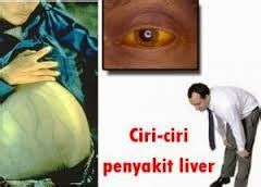 Obat Herbal Gangguan Liver Maxgiver 4 obat penyakit liver herbal kios obat herbal