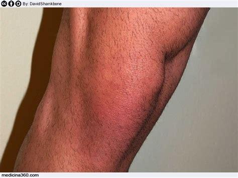 gonfiore interno ginocchio artrosi al ginocchio sintomi cause e terapia della